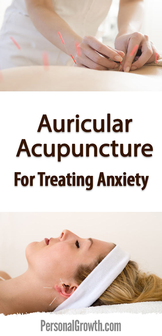 auricular-acupuncture-for-treating-anxiety-pin