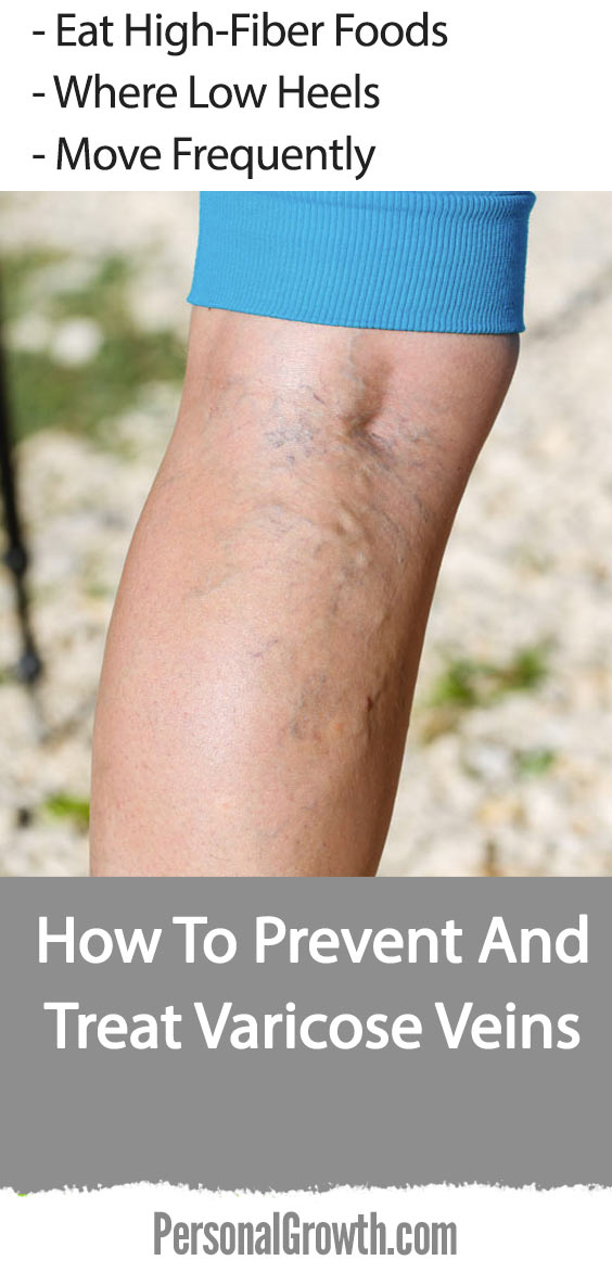 how-to-prevent-and-treat-varicose-veins-pin